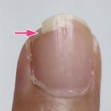 『爪が割れやすいのはコラーゲン不足のせい!?「BMペプチド5000」で補いましょ♪』の画像