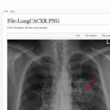 『 Wikipediaの病気についてのページは、90%が間違い:米医師調べ』の画像