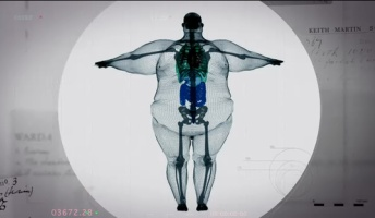 【驚愕】超巨漢をX線で撮影した結果wwwwww