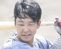 【悲報】鼻骨を骨折した阪神小幡さん、とんでもない顔になってしまう…