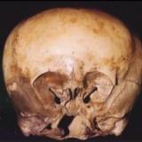 メキシコで見つかった頭蓋骨 ミトコンドリアDNAが人類とまったく違うエイリアンのものと判明