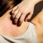 アトピー性皮膚炎とかいう甘ったれな病気wwwwww