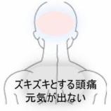 『後頭部からコメカミにかけての頭痛 室蘭登別すのさき鍼灸整骨院 症例報告』の画像