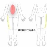 『介護現場で起きた腰痛 室蘭登別すのさき鍼灸整骨院 症例報告』の画像