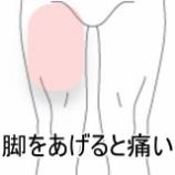 『靴下を履けない動作痛 症例報告 すのさき鍼灸整骨院』の画像