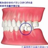 『歯が抜けたままだと・・・。【篠崎 ふかさわ歯科クリニック】』の画像