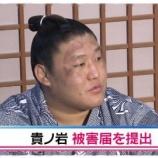 『日馬富士事件の真相「貴ノ岩の嘘」怪我してない可能性が浮上【画像】』の画像