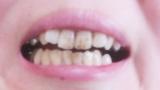 【悲報】ワイの歯汚すぎてグロい(※画像あり)