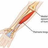 『不思議な筋肉:長掌筋・胸骨筋』の画像