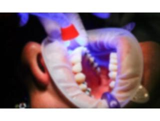 【コロナ】 回復後に「歯」が抜ける NYT紙報道