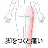 『跛行してしまう股関節の痛み 室蘭登別すのさき鍼灸整骨院 症例報告』の画像