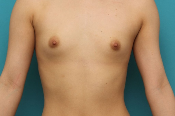 豊胸手術 脂肪注入