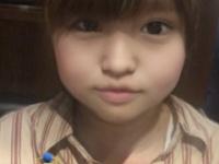 【元乃木坂46】手術後の伊藤かりんの顔がwwwwwwwww
