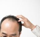 薄毛の人は心臓疾患のリスクが高い