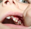 7歳女児の口から2時間余りで202本の歯を摘出