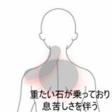 『息苦しい程の肩こり~石が乗っかっているよう~ 室蘭登別すのさき鍼灸整骨院 症例報告』の画像