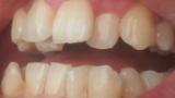 ワイの歯と歯並び、汚い(※画像あり)