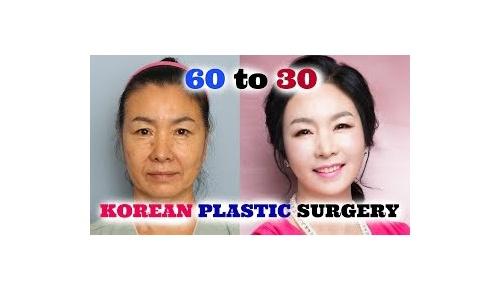 「私のママが韓国で整形して60歳から30歳に」海外から賛否両論の大反響