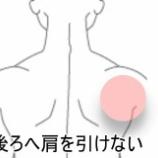 『スマッシュ動作ができない すのさき鍼灸整骨院症例報告』の画像