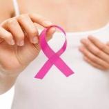 『必要の無い治療:乳がんの抗がん剤』の画像