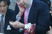 駐韓国アメリカ大使が暴漢に襲われる…ネットの反応