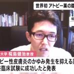 アトピー性皮膚炎の「かゆみの発生を抑える薬」臨床試験に成功 京都大学で世界初