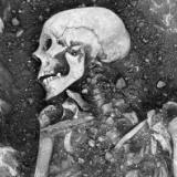 1400年前のヴァイキングの歯から「天然痘ウイルス」を発見! 20世紀に根絶したものと遺伝子が違っていた
