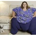 体重500キロの「世界で最も重い女性」…減量手術に成功!すでに100キロ以上減www