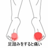 『足裏の痛み 室蘭登別すのさき鍼灸整骨院 症例報告』の画像
