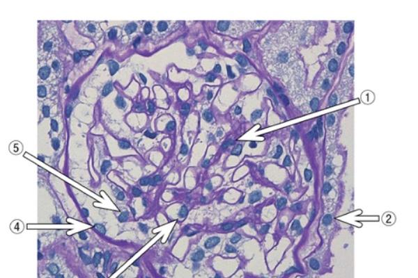 溶連菌 感染 後 糸 球体 腎炎