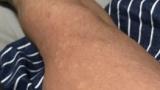 腕にボツボツがめちゃくちゃあるのだがこれってダニに噛まれたのか?www(※画像あり)