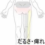 『腰痛・脚のだるさ 室蘭登別すのさき鍼灸整骨院 症例報告』の画像