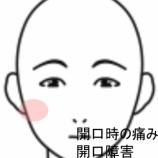 『顎関節の症例を追加しました。顎関節×鍼治療』の画像