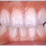 歯のホワイトニングでトラブル相次ぐ、「白くならなかった」「元に戻った」「歯がしみた」