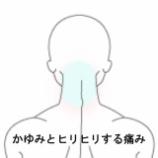 『後頭部の痒みと痛み 室蘭登別すのさき鍼灸整骨院 症例報告』の画像