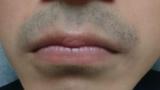 これって髭濃い?(※画像あり)