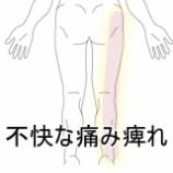 『ぎっくり腰の後遺症 足の痛み痺れ 室蘭登別すのさき鍼灸整骨院』の画像