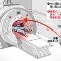 【MRI】磁力で酸素ボンベを吸い込む…検査中の患者が挟まれ死亡