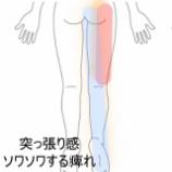 『疲れたときに感じる脚の痺れ 室蘭登別すのさき鍼灸整骨院 症例報告』の画像