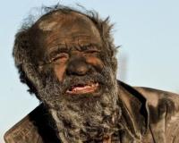 【画像】60年間身体を洗ったことのない男の見た目が凄いwwwwwwwwwww