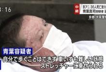 京アニ放火犯人・青葉真司容疑者を逮捕→現在の姿が・・・(画像あり)