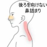 『頸痛と鼻詰まり 室蘭登別すのさき鍼灸整骨院 症例報告』の画像