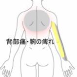 『事務仕事の患者さん 腕の痺れ 室蘭登別すのさき鍼灸整骨院 症例報告』の画像