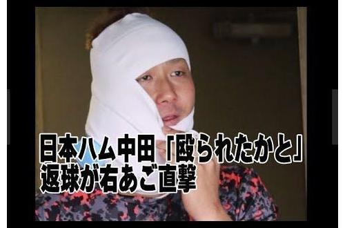 【画像あり】送球顔面直撃の中田翔さん「いてーよ大丈夫じゃねーよ俺じゃなかったら倒れてるよ誰かに殴られたかと」のサムネイル画像