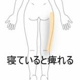 『夜に出現する脚の痺れ 室蘭登別すのさき鍼灸整骨院 症例報告』の画像