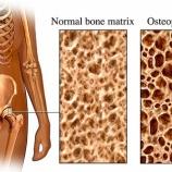 『治療薬で悪化する骨粗鬆症』の画像