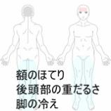 『冷え性・頭痛 室蘭登別すのさき鍼灸整骨院 症例報告』の画像