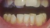 わいの歯並びがキモすぎると話題に(※画像あり)