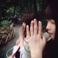 【画像】 川栄李奈ちゃんが手の傷を公開してるぞ!!!!! アイドルファンマスター