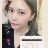 『【元乃木坂46】卒業生メンバー『小顔術(エラボトックス)を受けたよ・・・』』の画像